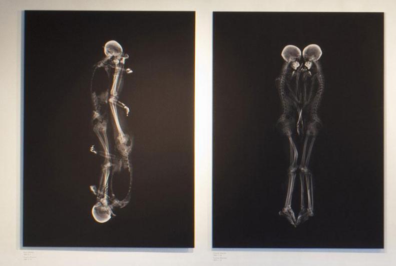 x-ray-couple-portraits-ayako-kanda-mayuka-hayashi-3